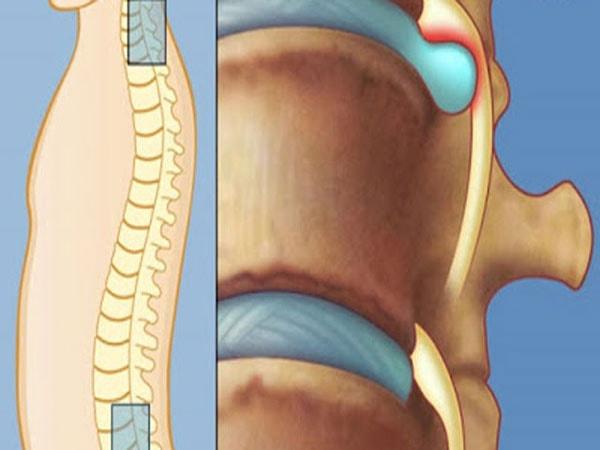 Những rủi ro khi phẫu thuật thoát vị đĩa đệm bạn có thể gặp 2