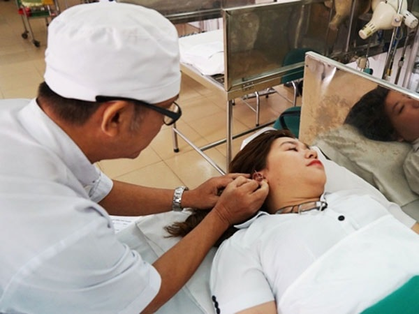 Chữa bệnh động kinh bằng phương pháp châm cứu 3