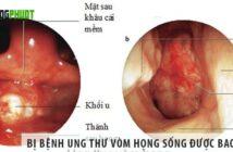 Bị bệnh ung thư vòm họng sống được bao lâu?
